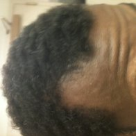2 1/2 month hair regrowth