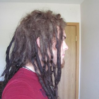 the right side of my head, my worst side of the 2. tons of loose hair, enough for 5 dreads, though the hairs are really short