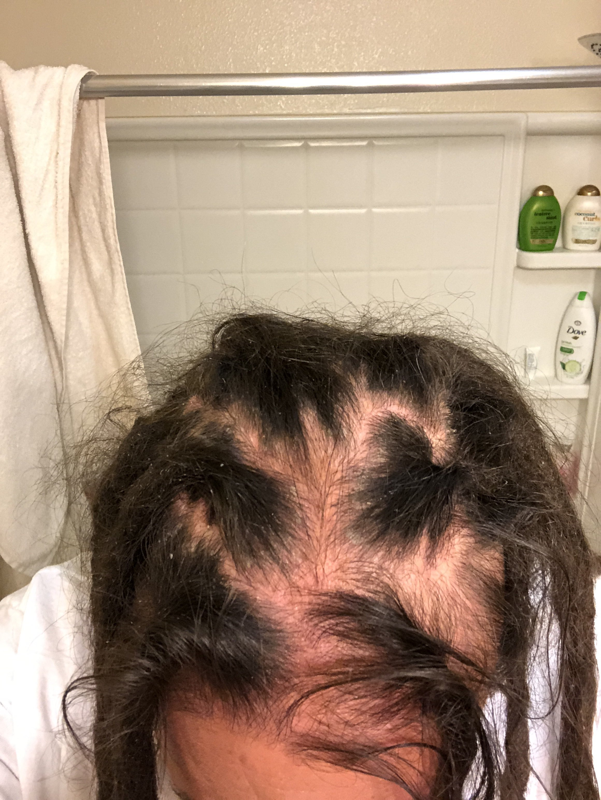 Traction Alopecia Help Dreadlocks Forums Dreadlocks Natural Dreads