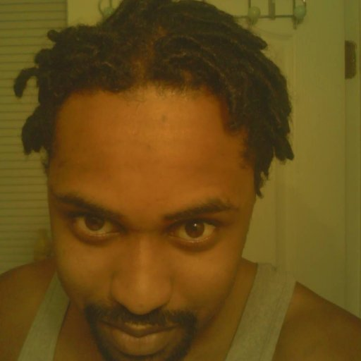 6 mth front smile dread