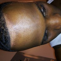 Serious scalp condition ...please help