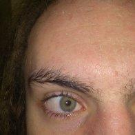facial flaking after baking soda and acv (followed exact amounts from the blog on baking soda and sea salt ratios)