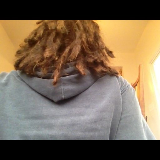 One year of dreadlocks