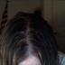 Neglect method; Day three; Top of head