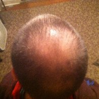 Balding cause by DreadHeadHQ methods