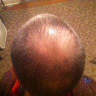 Balding cause by DreadHeadHQ methods