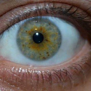 Mah eye