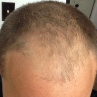 Growing with baldness