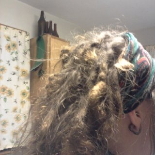A clearer shot of the right side of my head. One year of neglect. Still some flyaways. Lots of medallions.