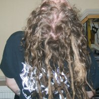 Back of my head 4 months