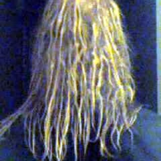 This picture was taken with my cell phone. My dreadlocks are starting to form loops and kinks.